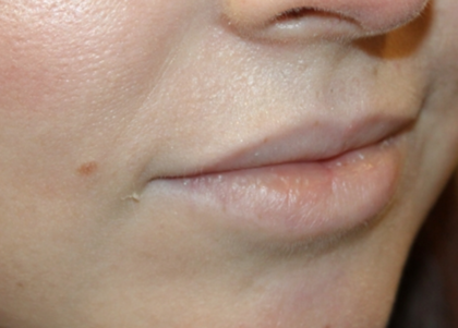 Lip Augmentation Before & After Patient #29304