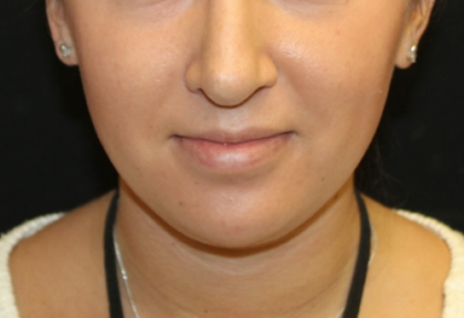 Kybella Before & After Patient #29312