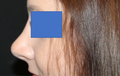 Rhinoplasty Before & After Patient #29423
