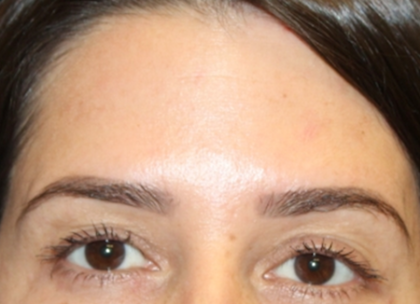 Botox and Dysport Before & After Patient #29343