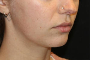 Kybella Before & After Patient #29328