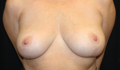Breast Lift Before & After Patient #29444