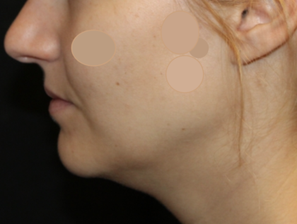 Kybella Before & After Patient #29434