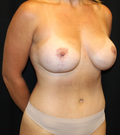 Mommy Makeover Before & After Patient #29609