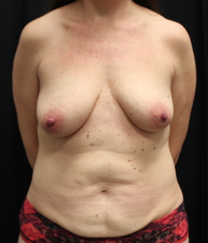 Tummy Tuck Before & After Patient #29773