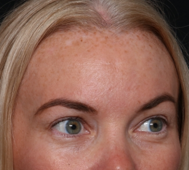 Brow Lift Before & After Patient #29694