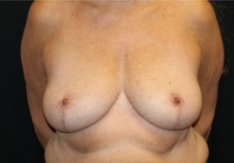 Breast Reduction Before & After Patient #29741