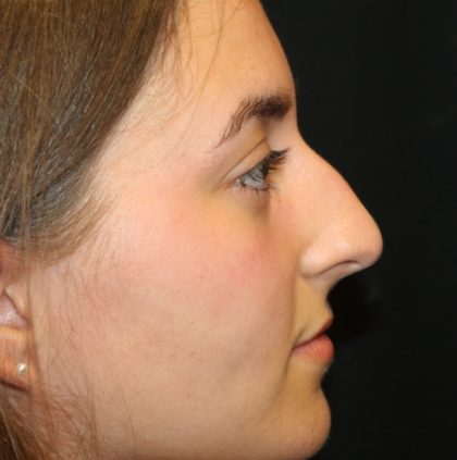 Rhinoplasty Before & After Patient #29674