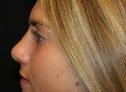 Rhinoplasty Before & After Patient #29683
