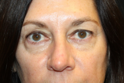 Blepharoplasty Before & After Patient #29832