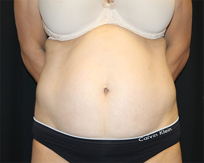 Tummy Tuck Before & After Patient #30079