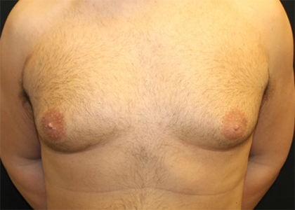 Gynecomastia Before & After Patient #29993