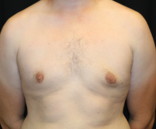 Gynecomastia Before & After Patient #29853