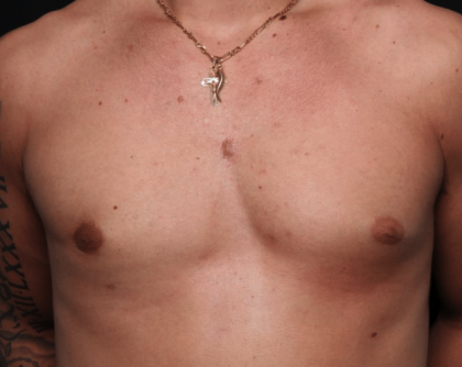 Gynecomastia Before & After Patient #30171
