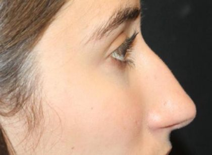 Rhinoplasty Before & After Patient #30321