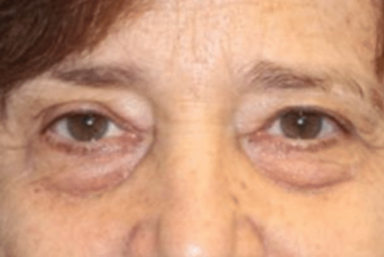 Blepharoplasty Before & After Patient #30271