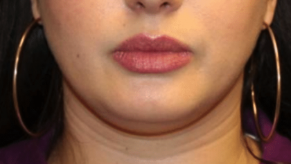 Kybella Before & After Patient #30257
