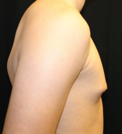 Gynecomastia Before & After Patient #30213