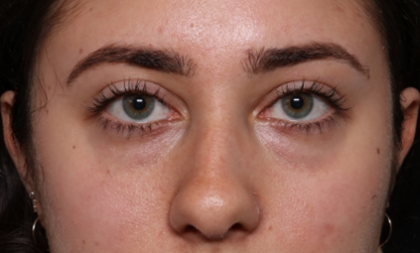 Injectable Fillers Before & After Patient #30444