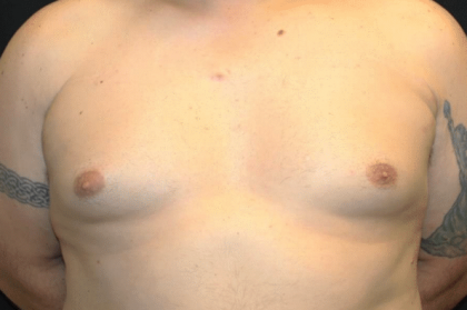 Gynecomastia Before & After Patient #30206