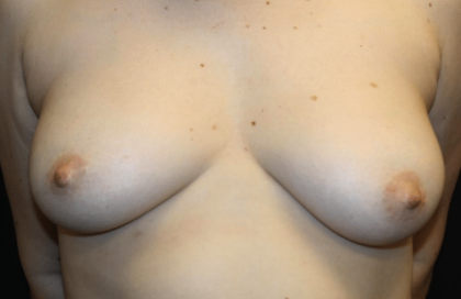 Nipple Revision Before & After Patient #30192