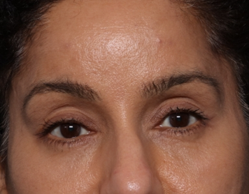 Brow Lift Before & After Patient #30678