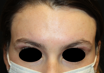 Botox and Dysport Before & After Patient #30576