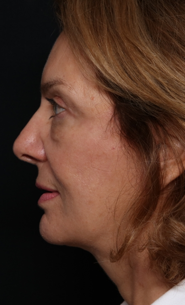 Facelift Before & After Patient #30487