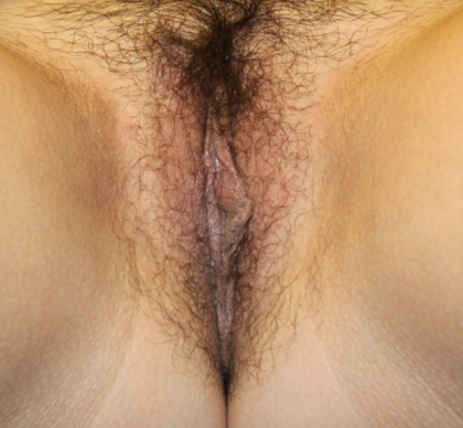Labiaplasty Before & After Patient #30530