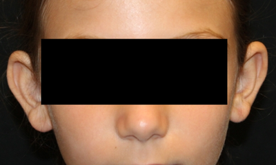 Otoplasty Before & After Patient #30478